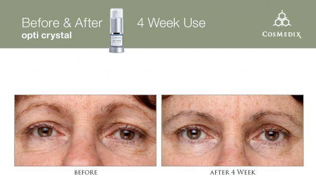 best eye cream before after