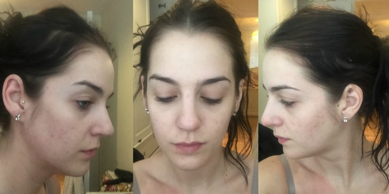 Stephanie after pictures acne treatment