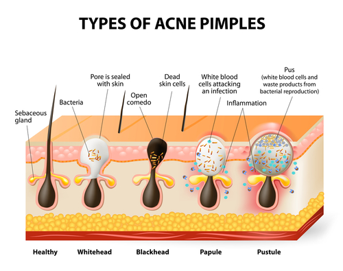 Types of acne pimple