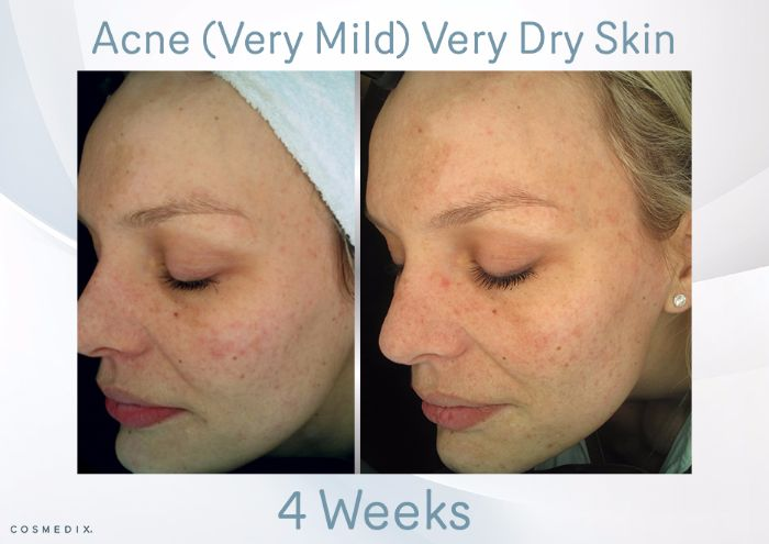 Facial acne dry skin care