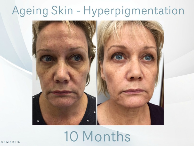 Ageing Skin – Transformation Tuesday