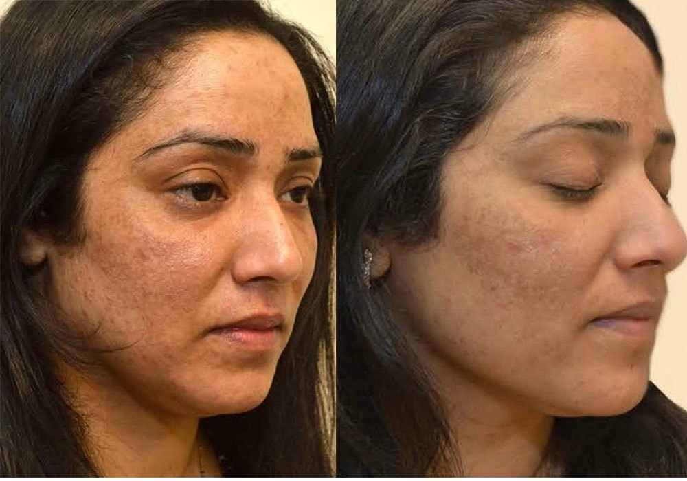 Melasma Transformation Tuesday