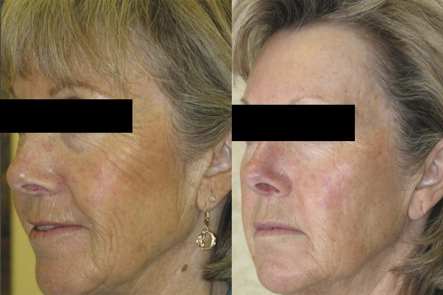 COSMEDIX Blueberry Jessner Peel Before and After