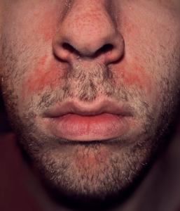 Seborrheic Dermatitis can occur alongside Rosacea