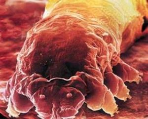 Population of Demodex Mite is ten times greater in skin affected by Papulopustular Rosacea