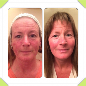 Before and After Treatment of Papulopustular Rosacea