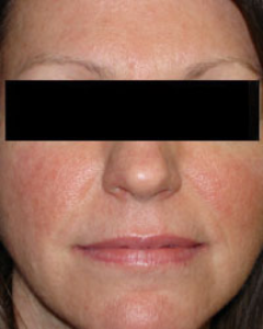 Rosacea Subtype 1 in Female Patient
