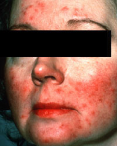 Rosacea Symptoms Subtype 2 in Female Patient