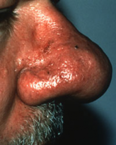 Rosacea Symptoms Subtype 3 in Male Patient
