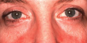 Rosacea Symptoms Subtype 4 in Female Patient